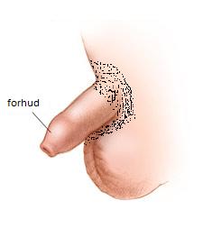 hævede penis efter omskæring